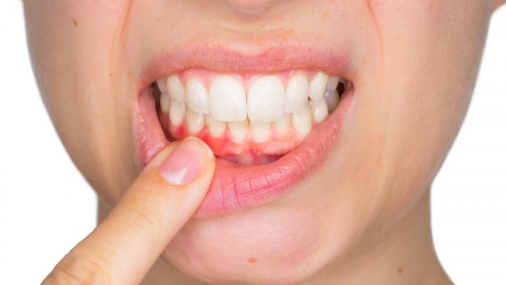 Zahnfleischentzündung behandeln lassen Prenzlauer Berg