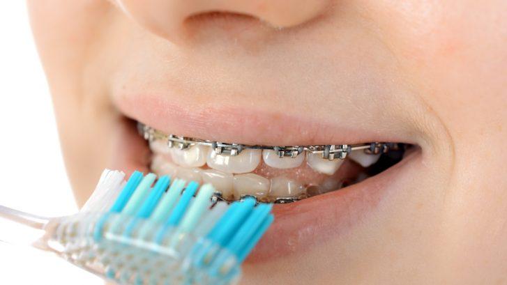 Nahaufnahme Hand hält Zahnbürste vor Mund mit fester Zahnspange